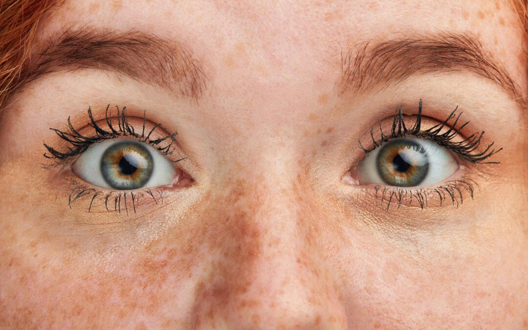 """Sieh dich! -denn schlechte Augen sind nicht """"normal"""""""